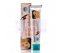 Крем против акне и прыщей, проблемной кожи, Гималая / Acne-n-Pimple Cream, Himalaya / 20 gr